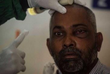India Kalut! Ribuan Kasus 'Jamur Hitam' Bikin Cacat Pasien Covid-19