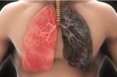 Inilah Cara Bersihkan Paru-paru Para Perokok!